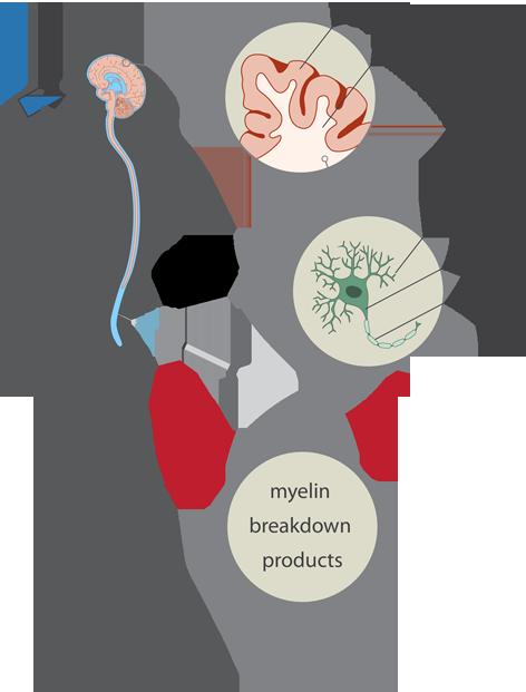 Figure_CHDR_Study_Setup_myelin_breakdown small